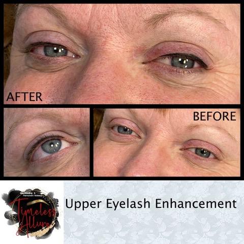 Upper Lashline Enhancement