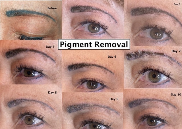 Tattoo Removal or Pigment Lightening