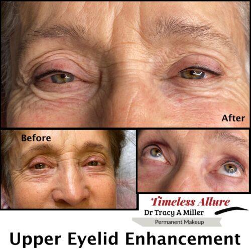 Upper_Eyelash_Enhancement