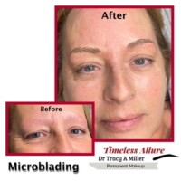 Microblading Immediately Before and After Procedure